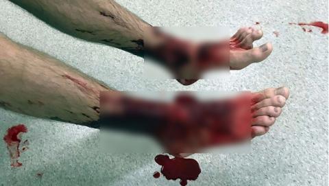 Extraños piojos marinos devoradores de carne atacan a un bañista