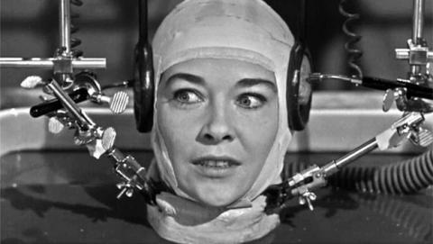 Médico italiano asegura haber completado un transplante de cabeza