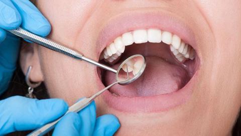 pasta dientes curar caries