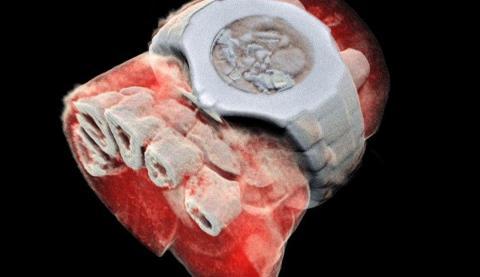Radiografías 3D en color