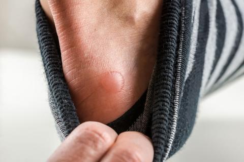 como se curan las llagas en la piel