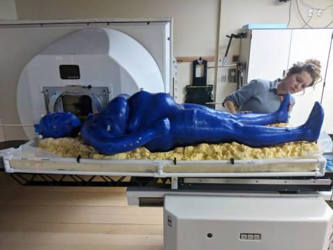 Maniquí impreso en 3d para radioterapia