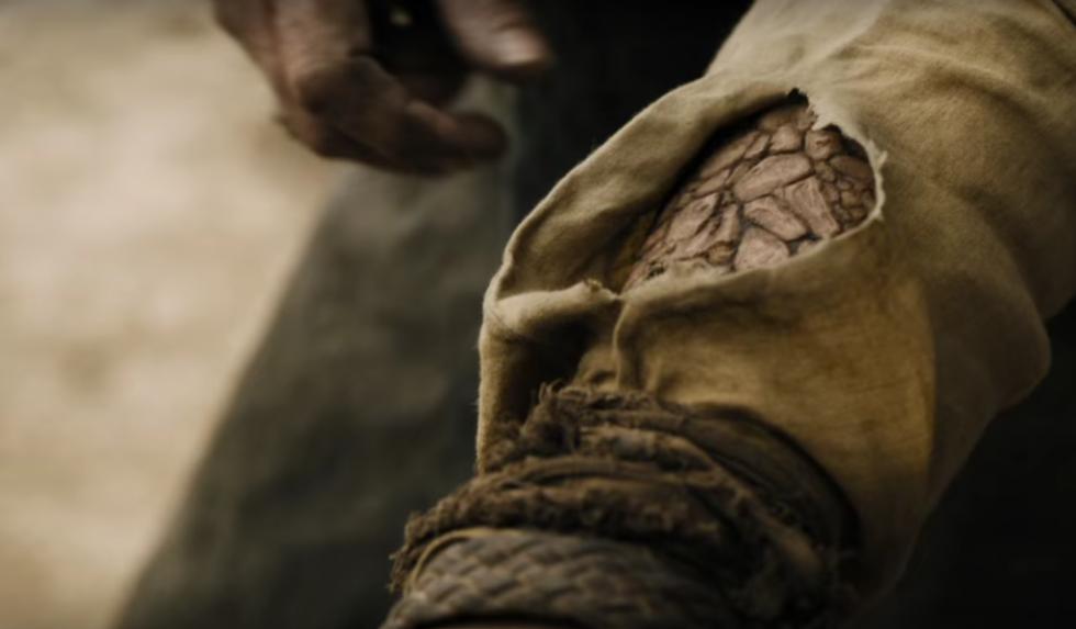 Jorah Mormont nunca sufre la enfermedad de piedra. Es otro personaje, Jon Connington, quien la sufre en los libros. Es de esperar que Jon jamás aparezca en la serie.